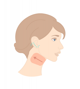 A necklift is a part of a facelift